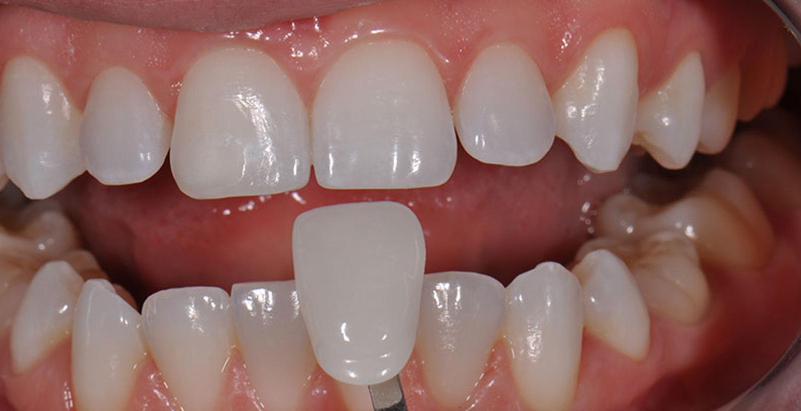 Dr. Adrian Malja dentista en puerto vallarta